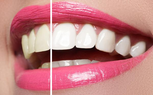 trattamento sbiancante denti