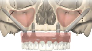 implantologia zigomatica