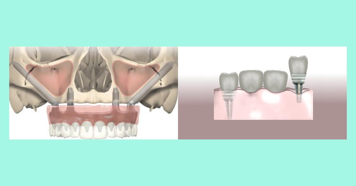 Impianto zigomatico o innesto osseo | Studio Dentistico Mingione