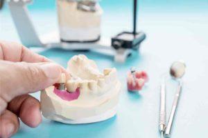 impianto dentale fallito 1