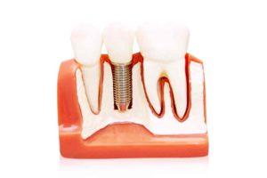impianto dentale fallito 2