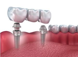 impianto-dentale-che-si-muove-1