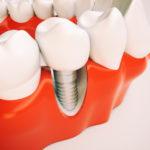 impianto-dentale-che-si-muove-3