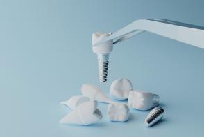 come-viene-fatto-un-impianto-dentale-2