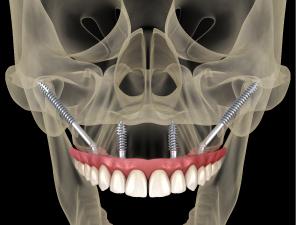 come-viene-fatto-un-impianto-dentale-3